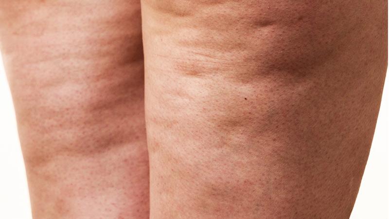 روش های لاغری و درمان چاقی موضعی