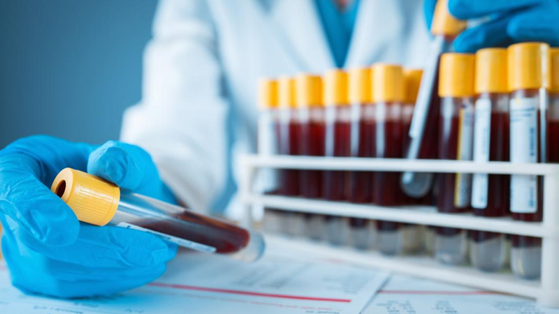 آزمایش خون دیابت