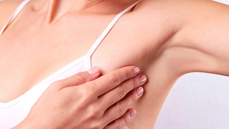 غدد لنفاوی و سرطان سینه